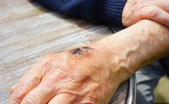 afbeelding van huidaandoening: een beschadiging aan de hand van een man
